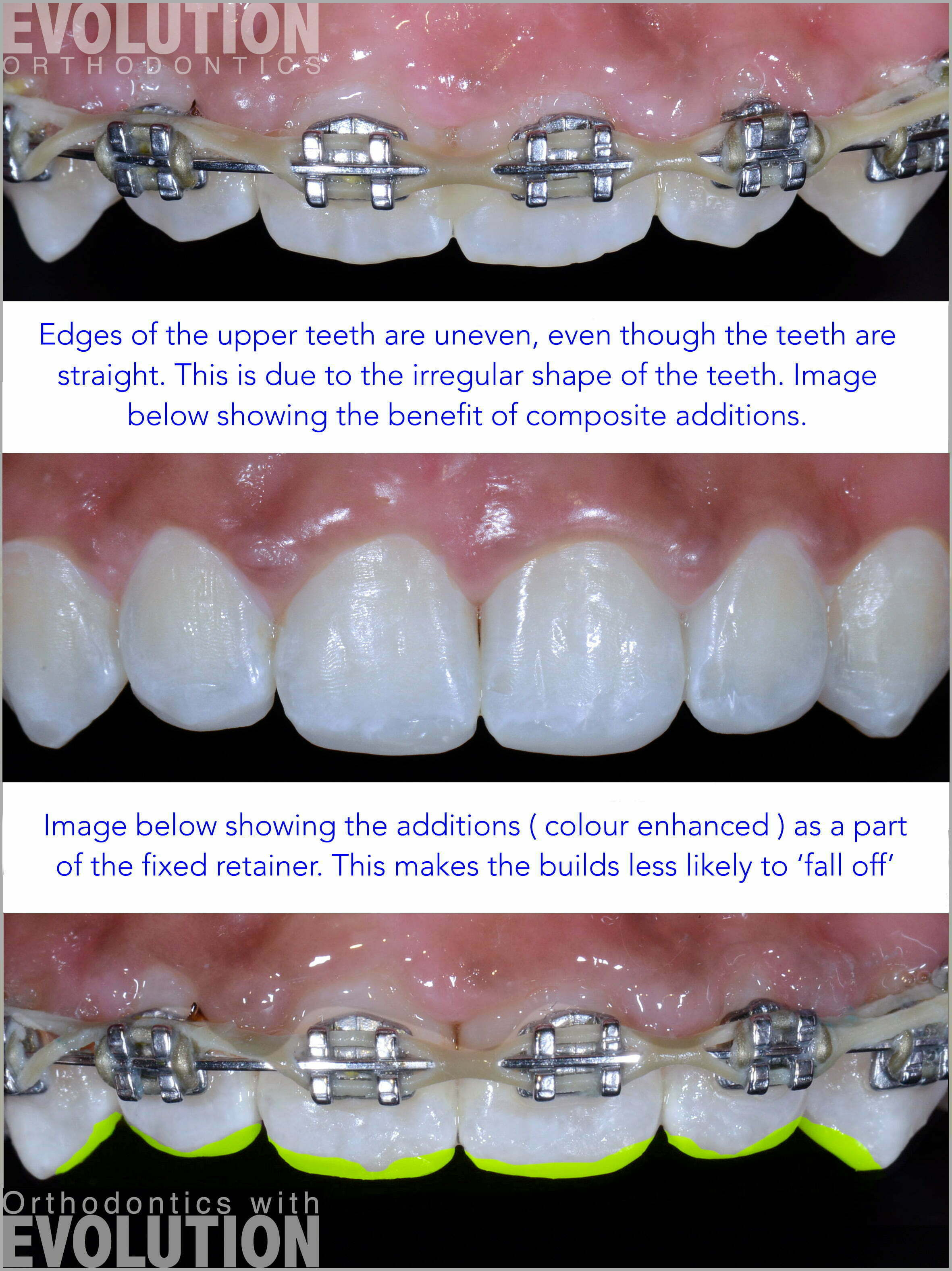 Why are retainers so important | Evolution Orthodontics